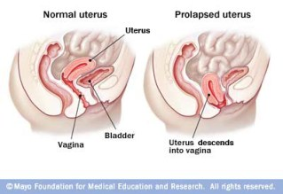 Image result for prolapsed uterus