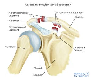 Acromioclavicular Joint Disorders - Physiopedia