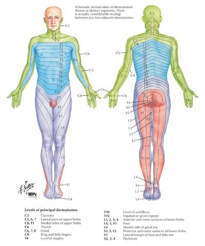 lumbar nerve root diagram 1997 ford f250 headlight wiring radiculopathy physiopedia dermatomal area