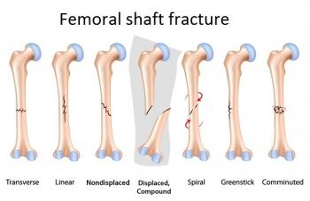 diagram of tibia stress fracture 2007 saab 9 3 wiring femoral fractures physiopedia enkel titel aangepast jpg