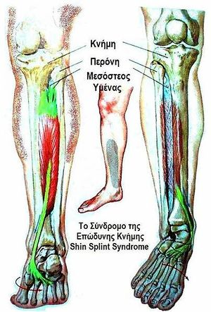 diagram of tibia stress fracture radio wiring 2003 chevy truck shin splints physiopedia clinically relevant anatomy