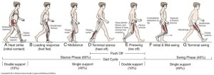 Gait in prosthetic rehabilitation  Physiopedia