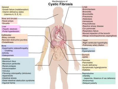 venn diagram type 1 and 2 diabetes dc motor wiring wire cystic fibrosis - physiopedia