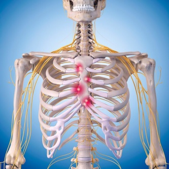 diagram of rib cage and muscles msd 6aln wiring costochrondritis - physiopedia