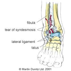 High ankle sprain Anatomy of ankle sprain injury