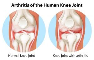 Arthritis of the human knee joint