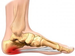 plantar faciitis and shockwave therapy