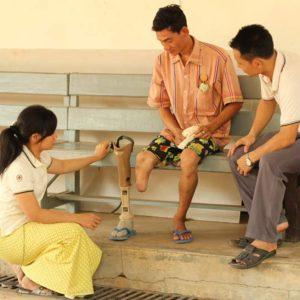 Lower Limb Amputee Rehabilitation Course. Man with lower limb amputation. Amputee, developing country, prosthetic limb.