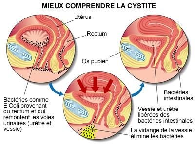 Cystites – Infections urinaires chez la femme