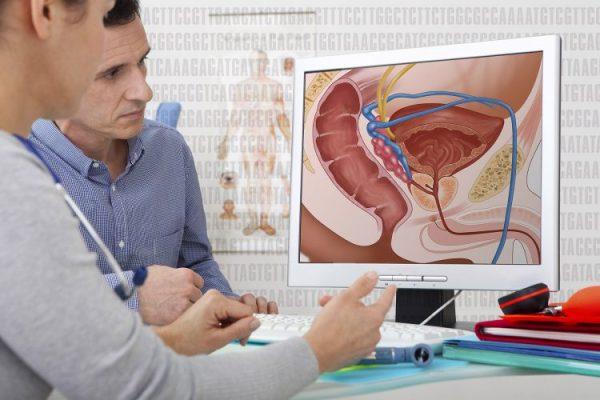 Généralités sur les maladies, prévention, traitements de la prostate