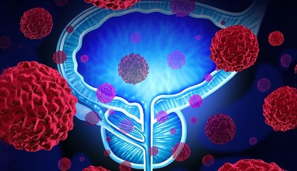 Types de maladies de la prostate