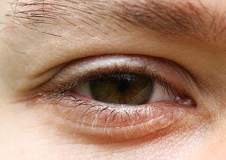 Borse sotto gli occhi: le cause più comuni e i possibili ...