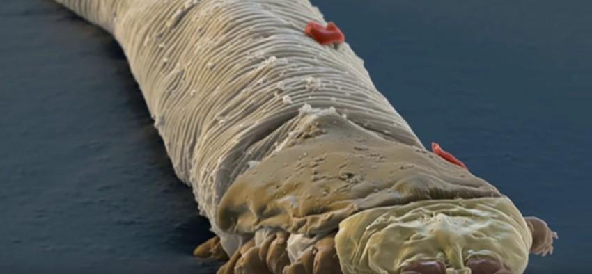 Salute con Elena Malysheva su vermi - I parassiti che prevengono la perdita di peso
