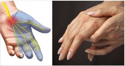 Perché si addormentano le mani? 8 segnali che il corpo ti manda sulla tua salute