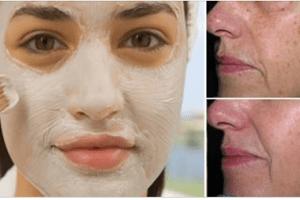 La maschera di bicarbonato e aceto che elimina le macchie della pelle, rughe e acne