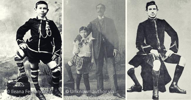 La storia straordinaria di un uomo con tre gambe la cui deformità lo condusse al successo