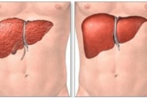 Disintossicazione del corpo come eseguirla passo dopo passo in 7 giorni