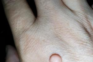 Hpv aceto di mele. Radioterapia De Protoni Asportazione papilloma tonsillare
