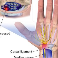 Hand Nerves Diagram Wiring For 4 Way Flat Trailer Connector Piano Playing And Preventing Carpal Tunnel Syndrome Emporium