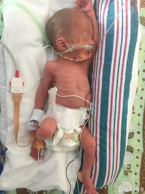 28 Week Preemie Complications