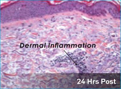 dermal_inflammation_ab