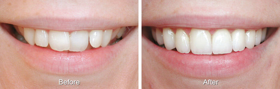Dental Before & After Photos