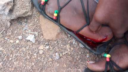 An LGBT+ activist injured with bloody foot in Kakuma Kenya