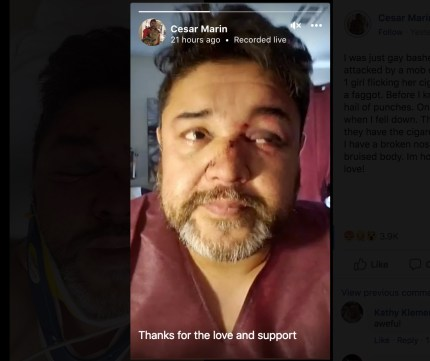 Cesar Martn says he his nose is broken in two different places as a result of the attack in downtown Phoenix.