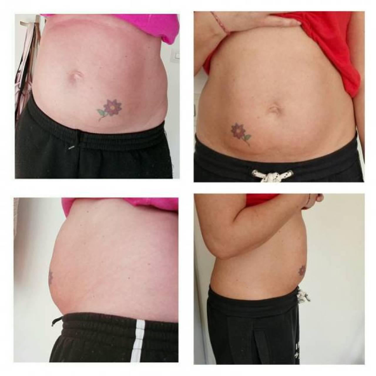 """collage 20150317081413415 - 15 """"Geweldige"""" opmerkingen als je (nog) niet slank bent"""