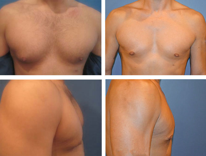 Gynecomastia Plastic Surgery for Men Springfield MA near