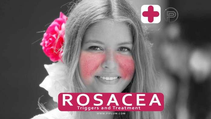 rosacea-treatment-triggers-drugs-redness-flush-healing-medicine