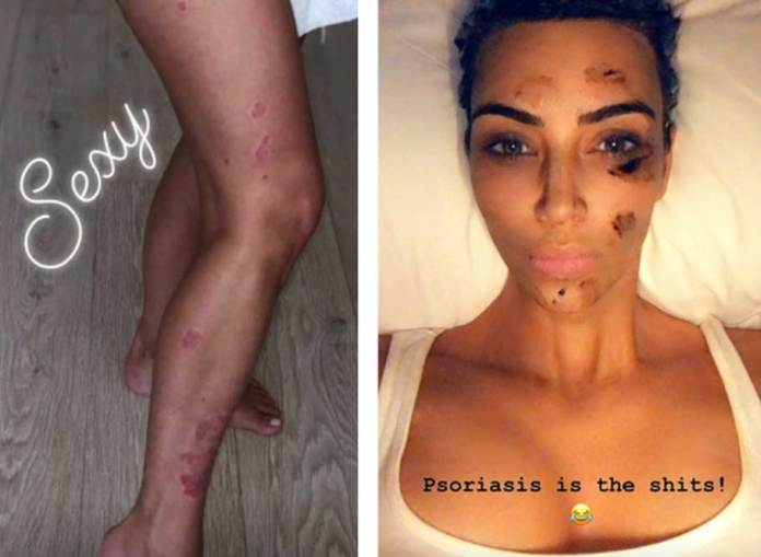 Celebrity-Kim-Kardashian-West-Has-Psoriasis