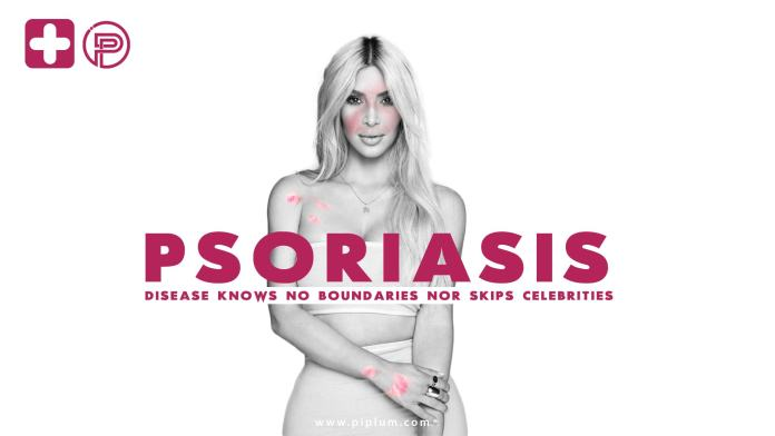 Disease-knows-no-boundaries-nor-skips-Celebrities-Psoriasis-causes-and-treatment-by-piplum