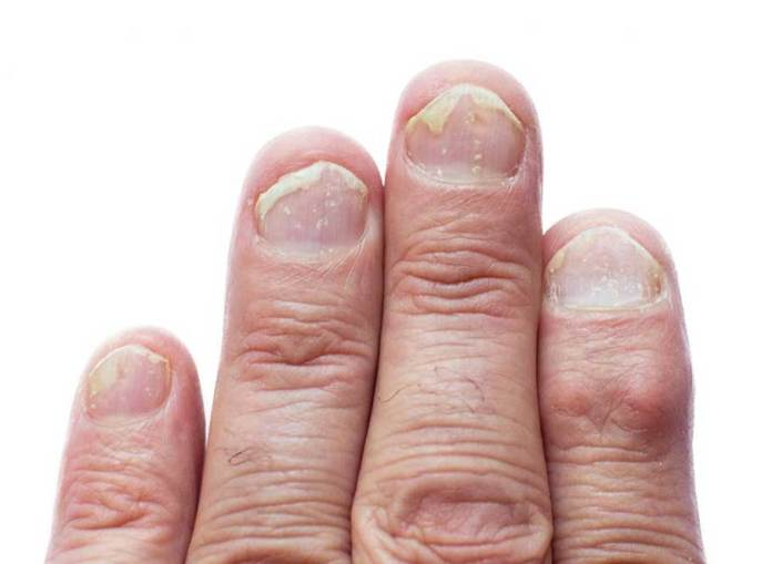 Nail-Psoriasis-causes-remedies-healing-treatments-drugs
