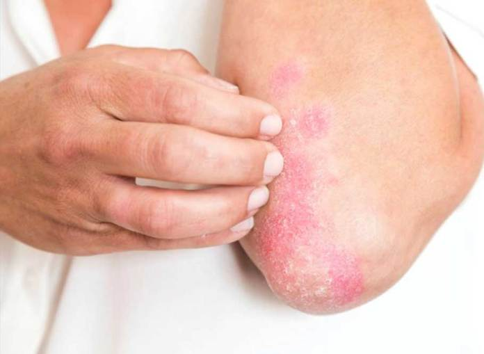 The-most-common-symptoms-of-psoriasis-are-skin-rashes-or-red-patches