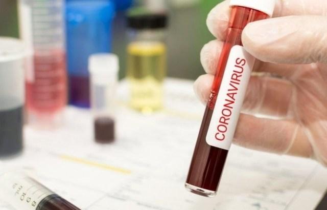 Recuperados do coronavírus se aproximam de 23 mil no Brasil