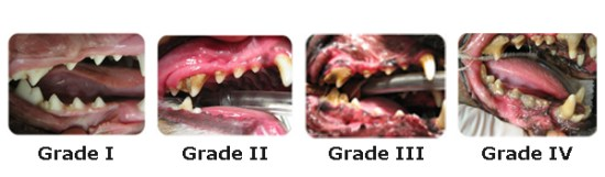 The 4 Stages of Dental Disease