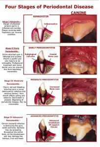 periodontaldz1