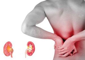 Symptoms-of-Kidney-Stones