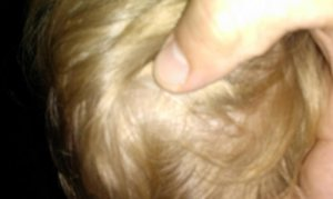 Kopfläuse müssen gründlich und geduldig bekämpft werden