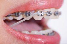 Zahnärztliche Behandlung - Zahnarzt KFO