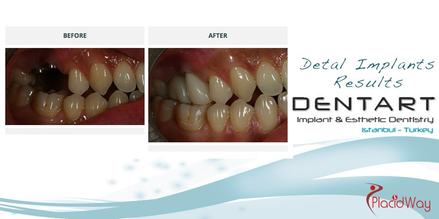 Dental Implants Before and After Photos - Turkey Medical Tourism