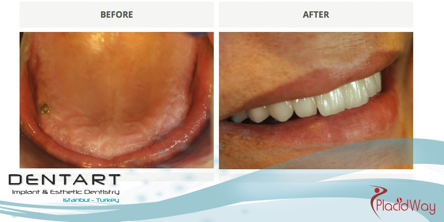 Full Mouth Restoration - Dental Implants Turkey - Medical Tourism