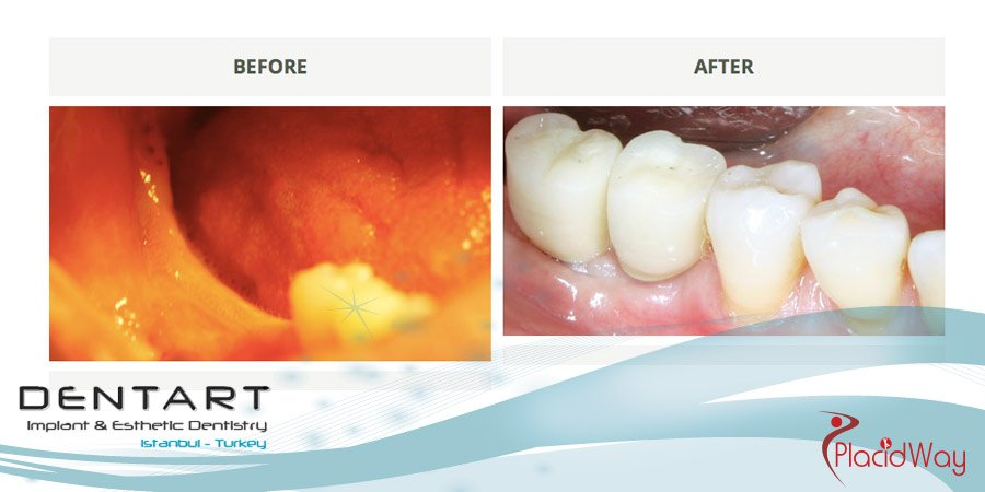Dental Implants Before and After Pictures