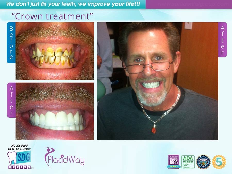 Before After Dental Crowns in Los Algodones Mexico