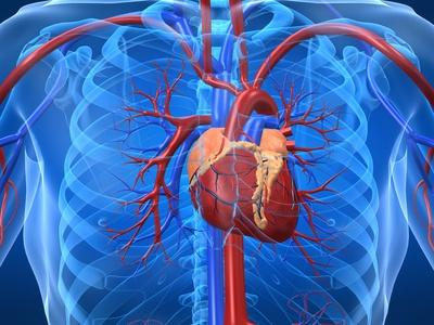 Cardiopatía coronaria