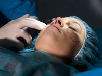 Reconstruction faciale après cancer