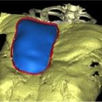 implant-3D-thorax-en-entonnoir-380x216