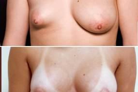 Lipoffiling des seins – Photos avant et après, vue de face