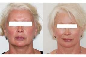 Lifting cervico-facial double plan. Vue de face